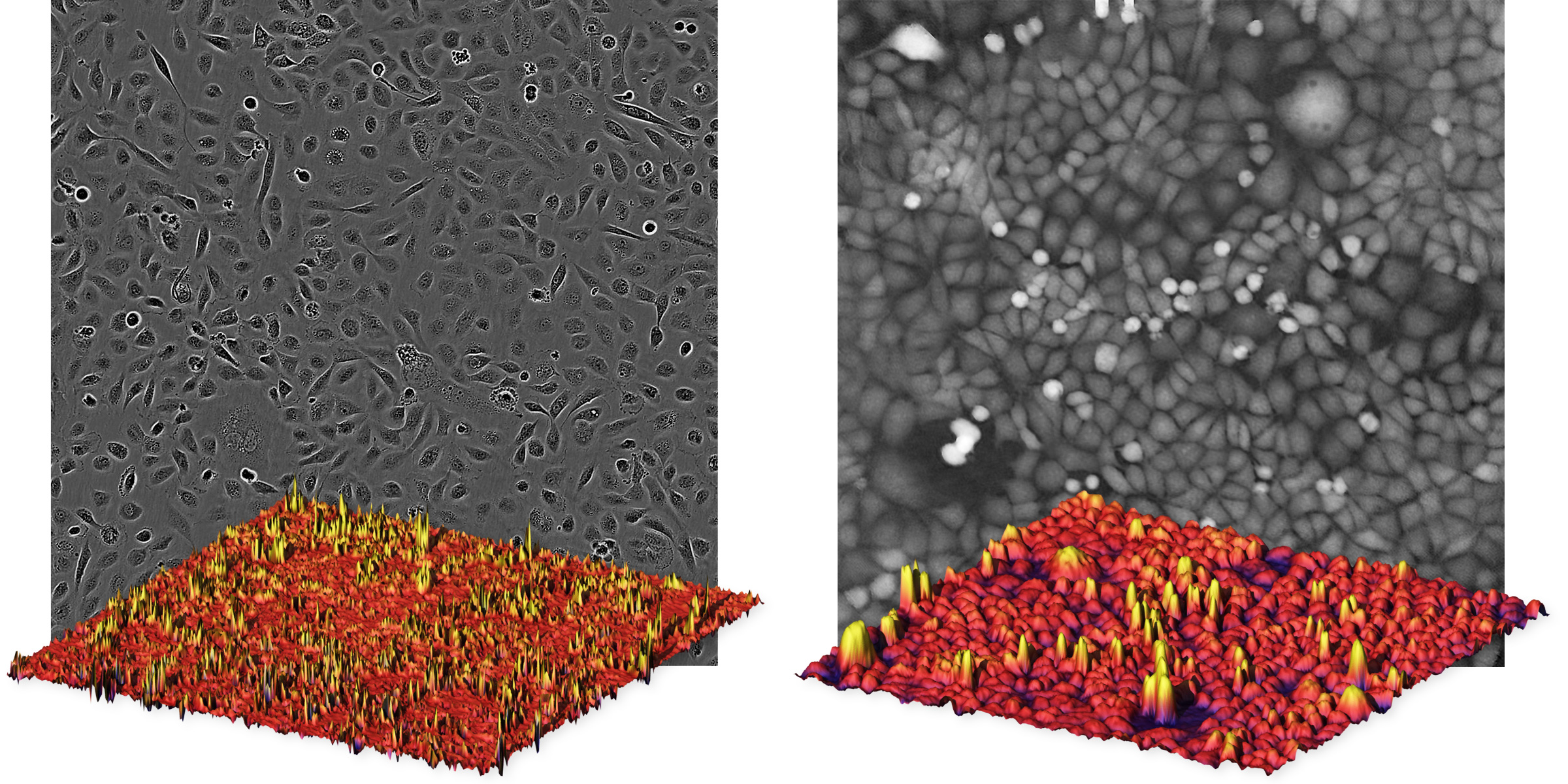In quantitative phase microscopy images cells appear as peaks